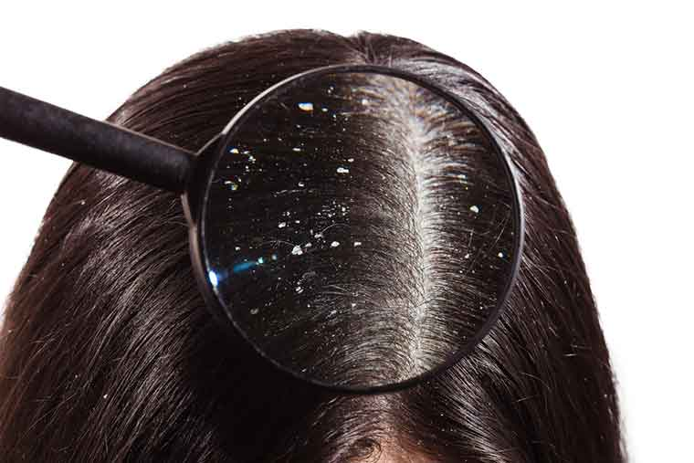 How to get rid of dandruff naturally - The Bottom Line